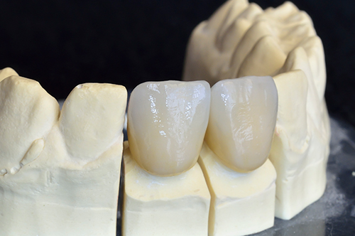 03053 Dental Crowns