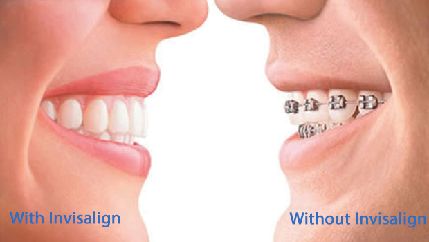 Invisalign Dentist in Londonderry
